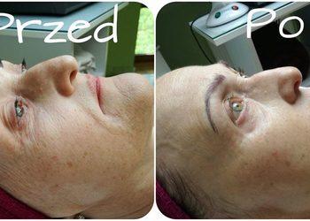Adidasy i Obcasy - Beauty Center - zabieg prp efekt plasma lift + mezoterapia frakcyjna