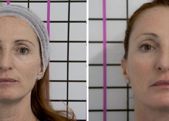 Beauty Complex - pqage evolution