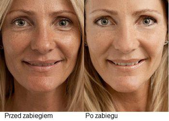 Hanna beauty studio - mezoterapia iglowa twarzy