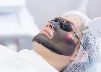 loveSKIN clinic - laserowy peeling węglowy (twarz, lub szyja, lub dekolt)