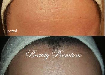 BEAUTY PREMIUM Kosmetologia Estetyczna - tox peel program - zabieg odmładzający, alternatywa dla botoksu