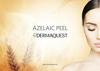 Personal Beauty Expert - azelaic peel derma quest