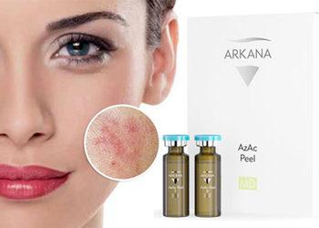 """Salon Kosmetyczny """"EVITA"""" - azac peel - zabieg złuszczająco - normalizujący z kwasem azelainowym"""