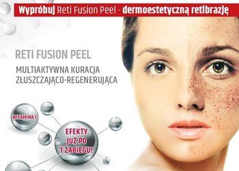 """Salon Kosmetyczny """"EVITA"""" - dermokosmetyczna retibrazja - reti fusion peel"""