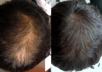 Galatea Beauty Power - karboksyterapia skóry głowy