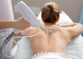 Monika Sekulska Permanent Makeup - laserowe usuwanie tatuażu