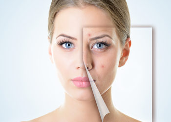 Softly Clinic - cpl trądzik - twarz + szyja + dekolt