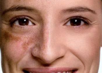 BEAUTY PREMIUM Kosmetologia Estetyczna - usuwanie przebarwień inno-exfo lightening