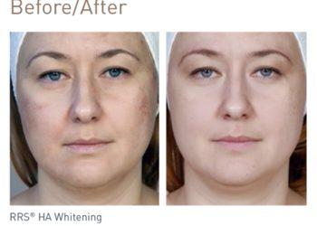 BEAUTY PREMIUM Kosmetologia Estetyczna - usuwanie przebarwień rrs ha whitening mezoterapia mikroigłowa (wyrób medyczny)