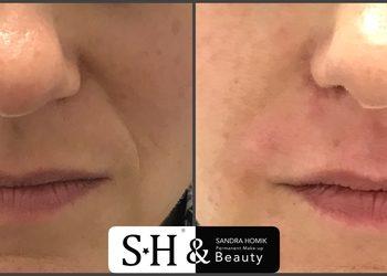 SH-Beauty Centrum Kosmetologii i Makijażu Permanentnego - bruzdy nosowo-wargowe