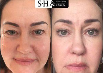 SH-Beauty Centrum Kosmetologii i Makijażu Permanentnego - plasma iq