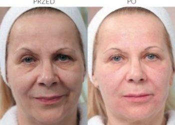 Salon Kosmetyczny SILEN - mezoterapia s-line revitacare
