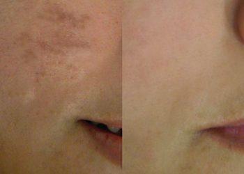 Softly Clinic - przebarwienia - czoło
