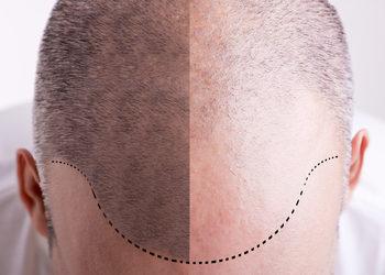 Softly Clinic - rf mikroigłowy - zabieg trychologiczny skóry głowy