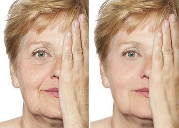 Softly Clinic - napiecie skóry oraz zmniejszenie porów - policzki
