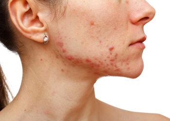 Softly Clinic - redukcja trądziku