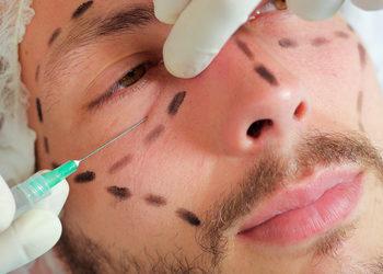 Softly Clinic - botox - redukcja zmarszczek poprzecznych czoła