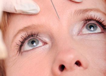Softly Clinic - botox - zmarszczki górnej wargi