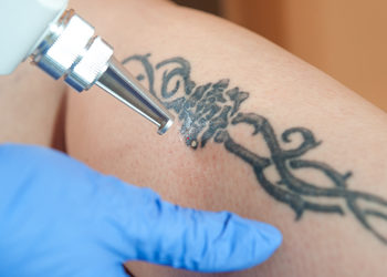 Softly Clinic - tatuaż 5x5 cm