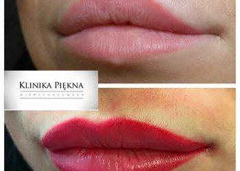 Klinika Piękna Wierzchołowska - usta permanentne