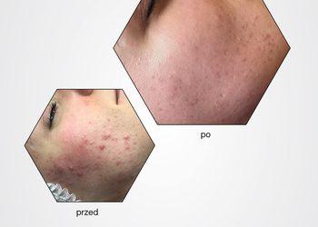 BEAUTY PREMIUM Kosmetologia Estetyczna - estgen kuracja łagodząca stany zapalne / trądzik, egzema, atopia, łuszczyca