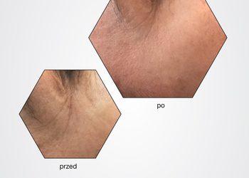 BEAUTY PREMIUM Kosmetologia Estetyczna - estgen kuracja odmładzająco-liftingująca
