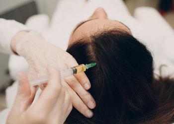 Jean Baptiste Klinika Urody & SPA - osocze- skóra głowy