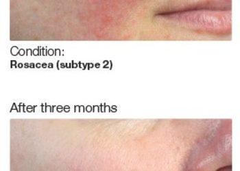 BEAUTY PREMIUM Kosmetologia Estetyczna - pca skin peeling sensi peel ( kwas tca, kwas azelainowy, kwas mlekowy, kwas kojowy, arbutyna