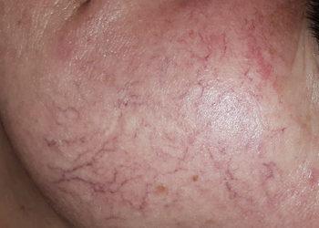 beautebar - phenomen c.r. complex - wskazania: rumień, zaczerwieniona skóra, trądzik różowaty...