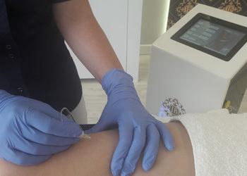 Jean Baptiste Klinika Urody & SPA - karbo rozstępy