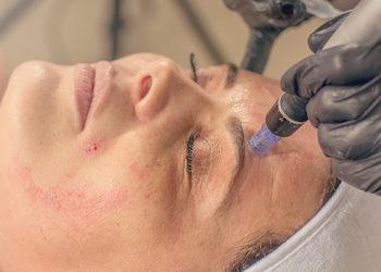 Jean Baptiste Klinika Urody & SPA - mezoterapia mikroigłowa- twarz