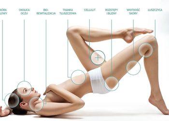 Olimpia Day SPA - karboksyterapia  julie - redukcja blizn i rozstępów