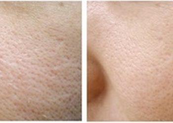 BEAUTY PREMIUM Kosmetologia Estetyczna - peeling na rozszerzone pory mesopeel jessner