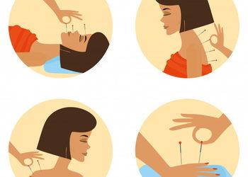 FOR YOU gabinet kosmetologii i promocji zdrowia - akupunktura  - pinezkowanie
