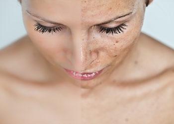 Glamour Instytut Urody - laser przebarwienia