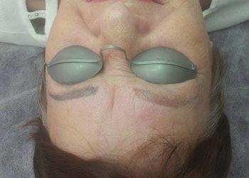 Gabinet Zdrowy Styl - usuwanie makijażu permanentnego lub tatuażu - brwi (k.42)
