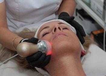 Instytut Kosmetologii Beyoutiful - mezoterapia bezigłowa couperose