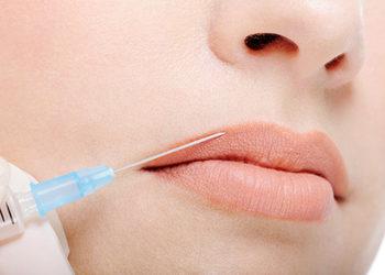 SALAMANDRA Beauty Clinic Bielsk Podlaski - wypełnienie ust kwasem hialuronowym