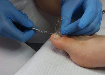 Gabinet Kosmetologiczny Anna Wyciślik - założenie jednej klamry podoklamra na wrastający paznokieć u stopy