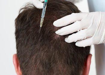 Jean Baptiste Klinika Urody & SPA - mezoterapia igłowa- skóra głowy