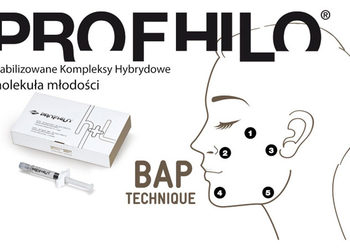Jean Baptiste Klinika Urody & SPA - profilo-molekuła młodości -remodeling - twarz