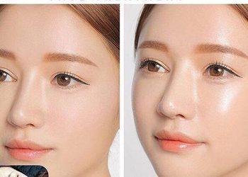 BEAUTY PREMIUM Kosmetologia Estetyczna - meso bb glow skin - promocja - 3 zabiegi
