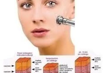 SC Beauty Clinic na Saskiej - mikrodermabrazja twarz, szyja, dekolt z ampułką lub maską