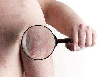 SC Beauty Clinic - karboksyterapia zmiany łuszczycowe