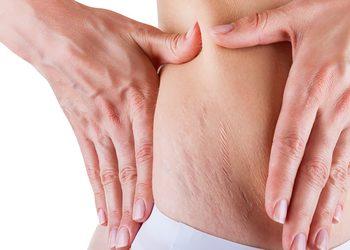 SC Beauty Clinic - karboksyterapia rozstępy średnia okolica