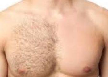 SC Beauty Clinic na Saskiej - depilacja klatki piersiowej