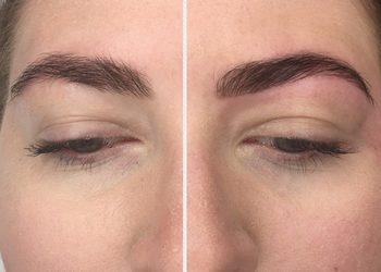 SC Beauty Clinic na Saskiej - lifting brwi + botox + keratyna