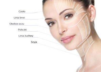 SC Beauty Clinic - smastherapy czoło