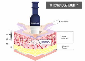 SC Beauty Clinic - carbolift okolice oka