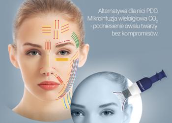 SC Beauty Clinic - carbolift twarz + szyja